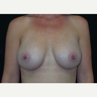 35-44 year old woman treated with Breast Augmentation after 3305033
