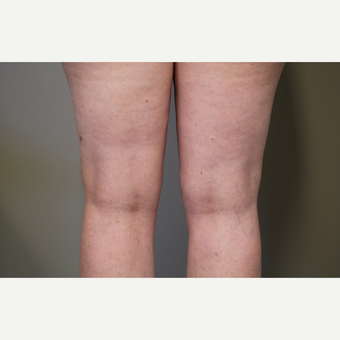 45-54 year old woman treated with Smart Lipo after 3706285