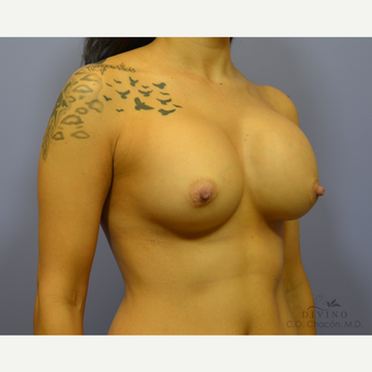 25-34 year old woman treated with Breast Implant Revision before 3415835