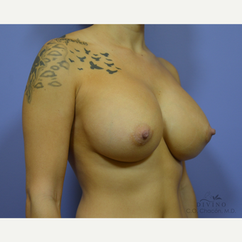 25-34 year old woman treated with Breast Implant Revision after 3415835