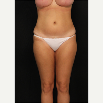 32 year old female with liposuction of hips and thighs after 3576066