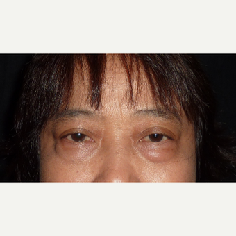 55-64 year old woman treated with Eyelid Surgery before 3840402