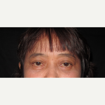 55-64 year old woman treated with Eyelid Surgery after 3840402