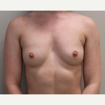 25-34 year old woman treated with Breast Augmentation before 3425216