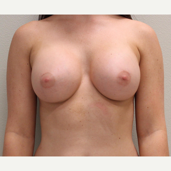 25-34 year old woman treated with Breast Augmentation after 3425216