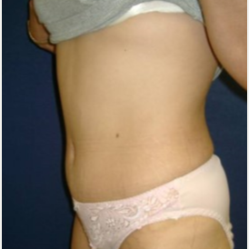 35-44 year old woman treated with Tummy Tuck after 3414904