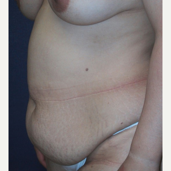 35-44 year old woman treated with Tummy Tuck before 3414904