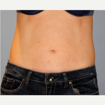 25-34 year old woman treated with CoolSculpting after 1672905