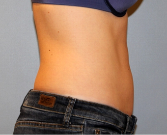 25-34 year old woman treated with CoolSculpting 1672905