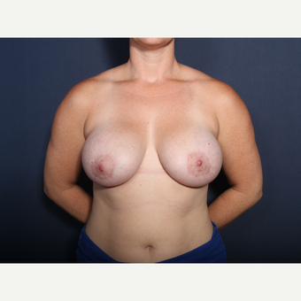 25-34 year old woman treated with Breast Lift with Implants (view 1 of 2) after 3406816