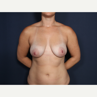 25-34 year old woman treated with Breast Lift with Implants (view 1 of 2) before 3406816