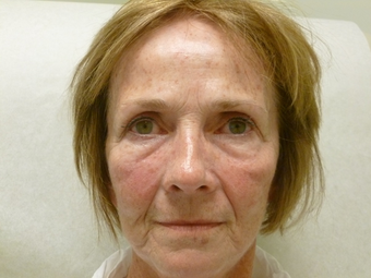 Sculptra for volume loss, 6 months after 4 vials in 65 year old female before 1187716