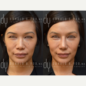 Revision Asian Rhinoplasty before 3477443