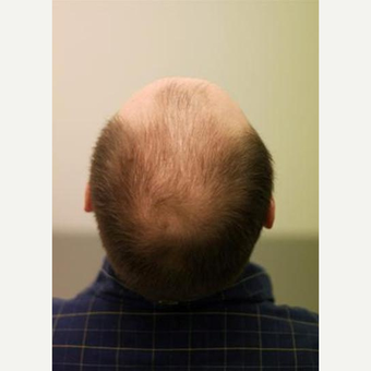 FUE Hair Transplant Result before 2765991