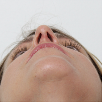 25-34 year old woman treated with Rhinoplasty after 3425596