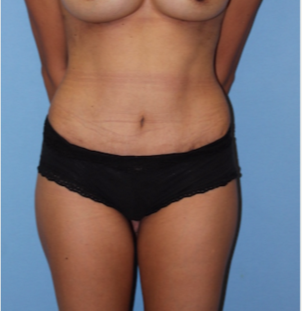 45-54 year old woman treated with Mini Tummy Tuck after 2737039