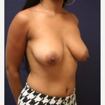 18-24 year old woman treated with Breast Lift before 2193390