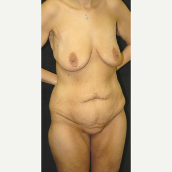 25-34 year old woman treated with Body Lift before 3181658