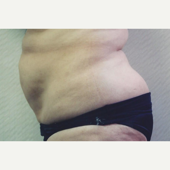 35-44 year old woman treated with Tummy Tuck before 3629436