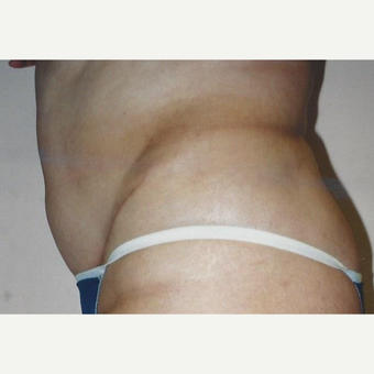 35-44 year old woman treated with Tummy Tuck after 3629436