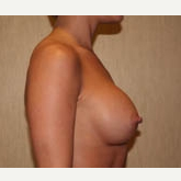 25-34 year old woman treated with Breast Implants after 3303907