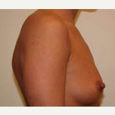 25-34 year old woman treated with Breast Implants before 3303907