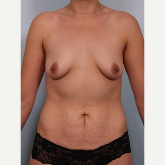 25-34 year old woman treated with Breast Lift with Implants before 3502617