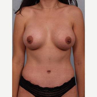 25-34 year old woman treated with Breast Lift with Implants after 3502617