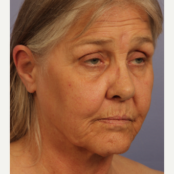55-64 year old woman treated with Facelift before 3659214