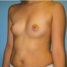 Breast Augmentation before 3665692