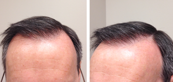 45-54 year old man treated with FUE Hair Transplant