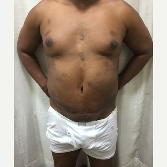 35-44 year old man treated with redo Male Tummy Tuck after 3316828