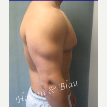 18-24 year old man treated with Male Breast Reduction before 3332944