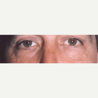 45-54 year old man treated with Eye Bags Treatment before 3545028