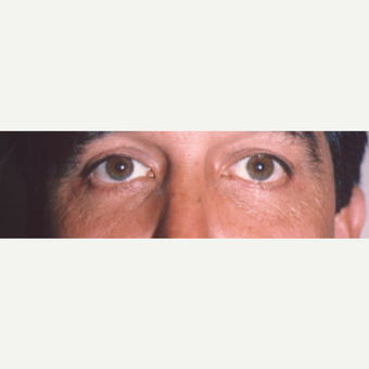 45-54 year old man treated with Eye Bags Treatment after 3545028