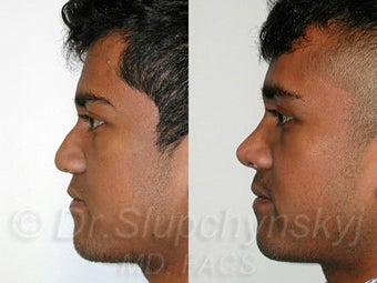 Male Ethnic Rhinoplasty  after 1200348