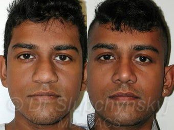 Male Ethnic Rhinoplasty  before 1200348