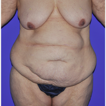 55-64 year old woman treated with Body Lift before 3455249