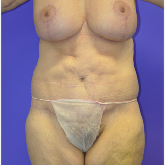 55-64 year old woman treated with Body Lift after 3455249