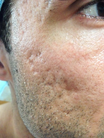 Acne Scarring treated with Subcision and Fat Grafting/Laser before 1198050