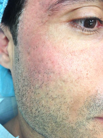 Acne Scarring treated with Subcision and Fat Grafting/Laser after 1198050