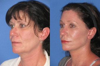 Laser Skin Resurfacing before 1156584