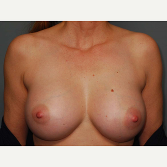 49 y/o Inframammary Sub Muscular Breast Augmentation after 3066057
