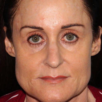 54 year old woman treated with Botox for clenching, teeth grinding, headaches,and enlarged masseters before 3623954