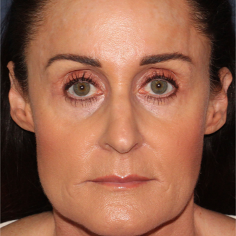 54 year old woman treated with Botox for clenching, teeth grinding, headaches,and enlarged masseters after 3623954