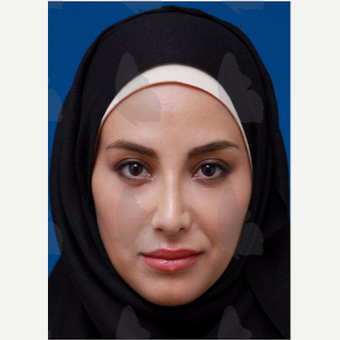 25-34 year old woman treated with non surgical Facelift after 2783115