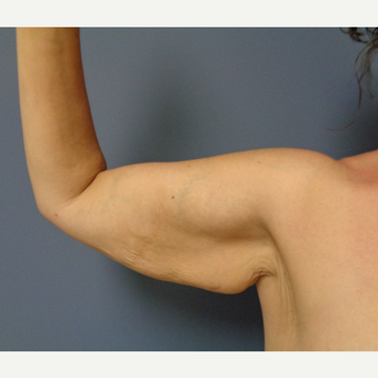 45-54 year old woman treated with Arm Lift before 3747256