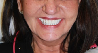 All-on-4® Dental Implants after 1327619