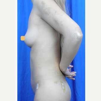 25-34 year old woman treated with Liposuction after 3424797