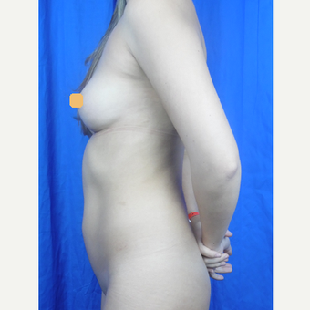 25-34 year old woman treated with Liposuction before 3424797